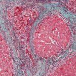 Названы необычные симптомы цирроза печени